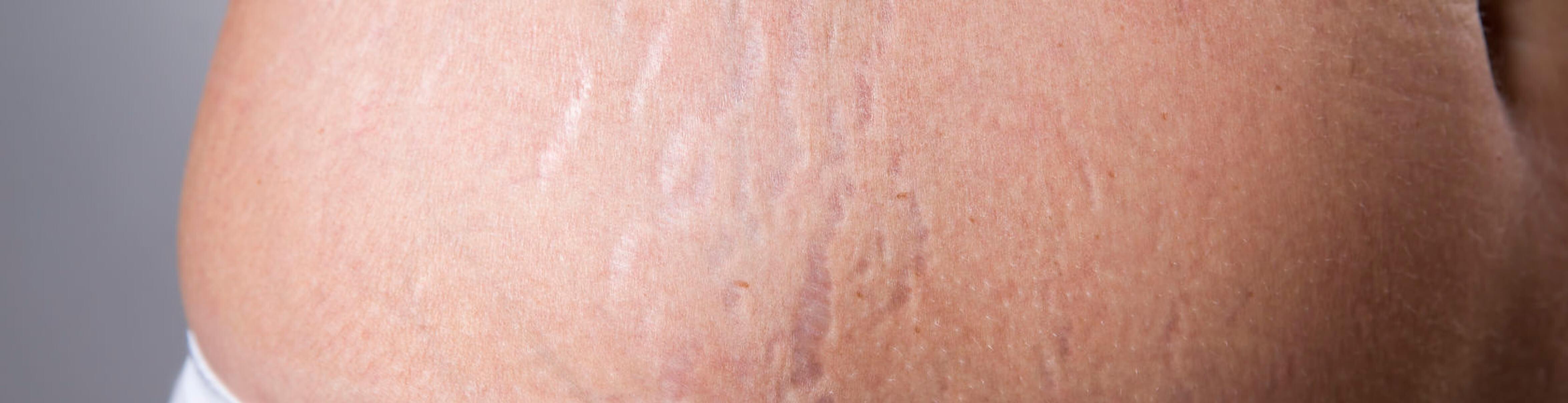 scar_treatment